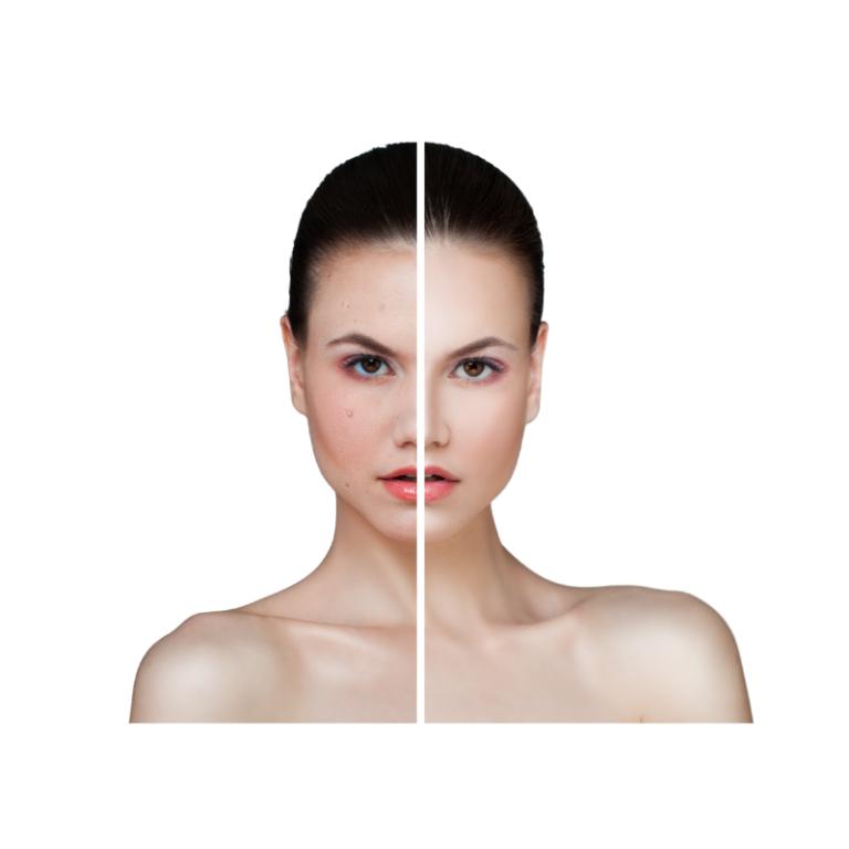 Mesoterapia facial quita manchas